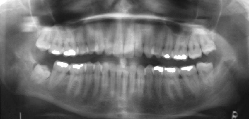 Digitales Röntgen